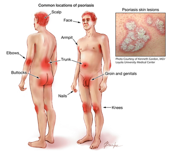 Psoriasis takes many forms and each differs in severity, duration, location, shape and scale pattern 2