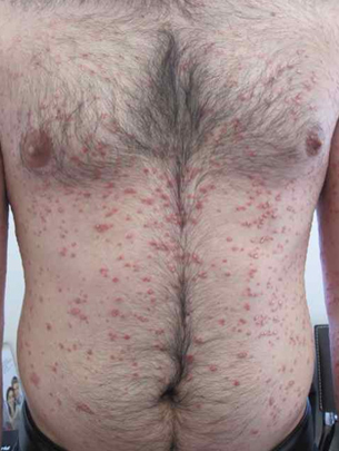 about psoriasis