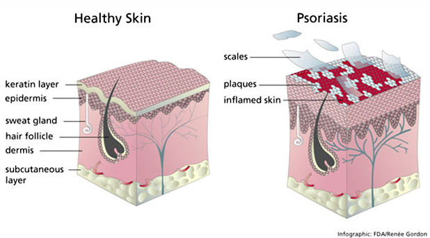 What is Psoriasis Skin Conditions Toronto